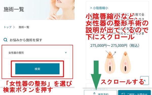 聖心美容外科クリニックでのピンクインティメイトシステムの説明③